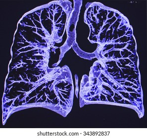 lungs CT