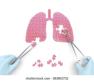 Lungs operation puzzle concept: hands of surgeon with surgical instruments (tools) perform lungs surgery as a result of respiratory disease, pneumonia, tuberculosis, bronchitis, asthma, lung abscess