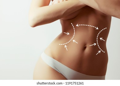 lymph drainage for woman body, concept photo with graphic marks