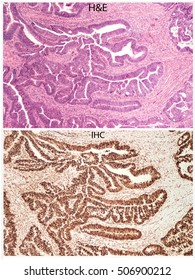 Lynch Syndrome Testing of Colon Cancer Tissue: Top panel shows routine H&E stain.  Bottom panel shows immunohistochemistry (IHC) stain for mismatch repair protein (such as MLH2, MSH2, MSH6, PMS2).