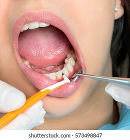 Macro close up of hands doing inter dental cleaning on human teeth.Human mouth wide open with inter dental brush between teeth.
