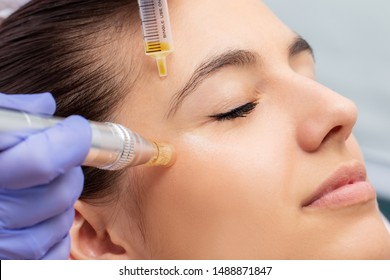 Macro close up of therapist injecting enzymes and with derma pen around woman's eyes.