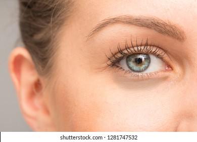 macro of dark circles under eye