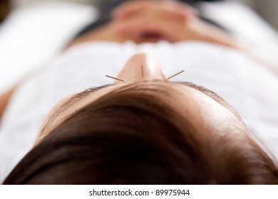 Macro detail of three needles in face of acupuncture patient