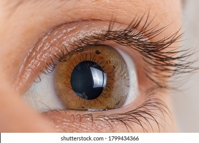 Macro eye photo. Keratoconus 2 degree - eye disease, thinning of the cornea in the form of a cone. The cornea plastic