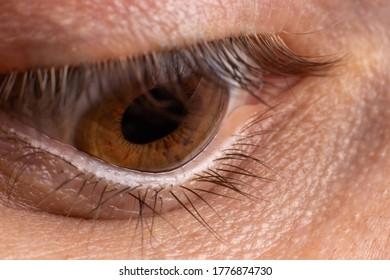 Macro eye photo. Keratoconus 4 degree - eye disease, thinning of the cornea in the form of a cone. The cornea plastic