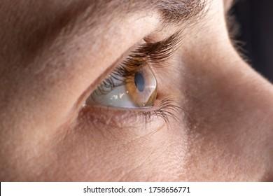 Macro eye photo. Keratoconus - eye disease, thinning of the cornea in the form of a cone. The cornea plastic.