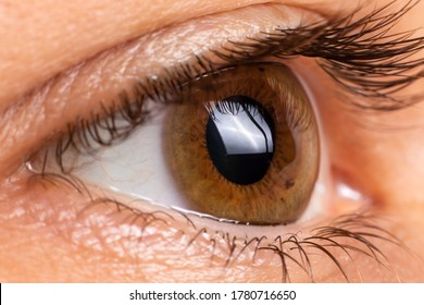 Macro eye photo. Keratoconus - eye disease, thinning of the cornea in the form of a cone. The cornea plastic