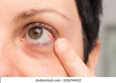 Macro of female red eye