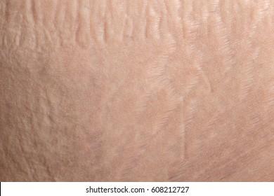 Macro of human skin belly