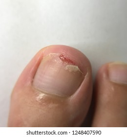 Cracked Toe Nail Images, Stock Photos & Vectors | Shutterstock
