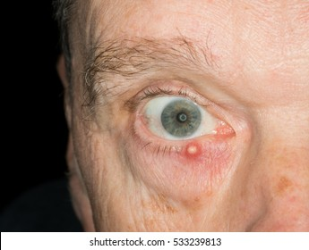 Macro image infected stye on the lower lid of a senior adult male eye