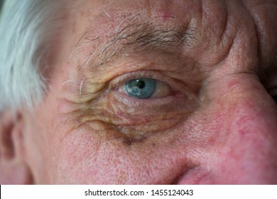 Eye Socket Images Stock Photos Vectors Shutterstock