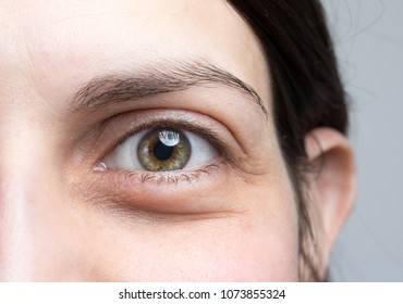 Macro image of woman puffy eye, female with eye bags