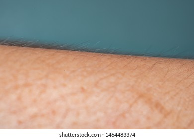 Macro images of arms that see the pores