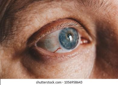 macro photo of the eye. blood vessels on the eyes. eyelashes in macro. pupil close-up. Acanthamoebic keratitis. Blepharitis. Asthenopia. the eye of an elderly person. blue eyes
