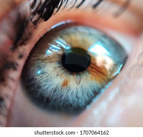 Macro photo of an eye with heterochromia.  Blue eye with a brown spot.  Close-up eye