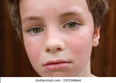 Macro shot of a child's hot face with flushed cheeks and sweat pearls above the lip