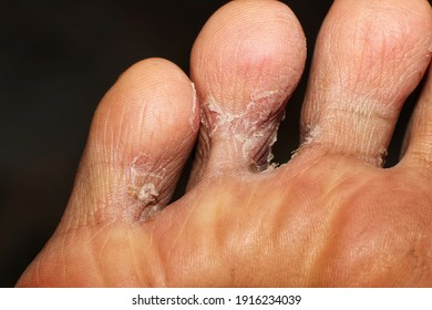 Macro shot photography of tinea pedis fungal infection on toe. Tinea pedis is the term used for a dermatophyte infection of the soles of the feet and the interdigital spaces