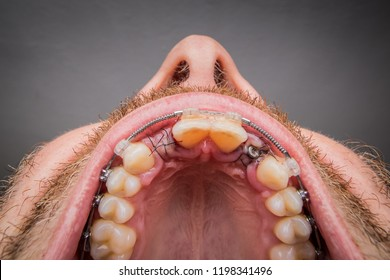 Macro shot of a two installed implants in a human mouth. Closed healing implant on left with visible stitches and open healing implant on right surrounded by gums and stitches.