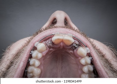Macro shot of a two installed implants in a human mouth. Closed healing implant on left with visible stitches and open healing implant on right surrounded by gums and stitches. Copy space on top