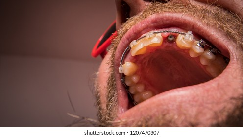 Macro shot of a two installed implants in a human mouth. Closed healing implant on left and open healing implant on on right surrounded by gums and healing tissue.  Visible nut of an implant in jaw