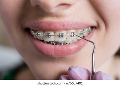 Macro shot of white teeth with braces. Smiling female patient with metal brackets at the dental office. Dentist holding probe. Orthodontic Treatment.
