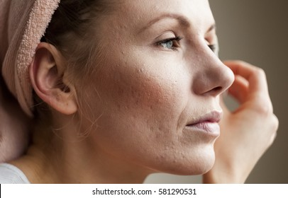 Macro shot of young woman's cheek with typical problem with acne, acne rosacea, and pimples in the adulthood time.