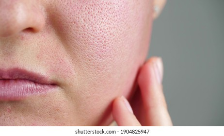 Macro skin with enlarged pores. Allergic reaction, peeling, care for problem skin.