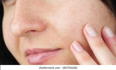 Macro skin with enlarged pores. Female face with problem skin.