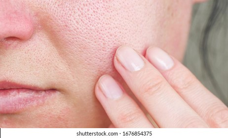 Macro skin with enlarged pores. The girl touches the irritated red skin with her fingers.