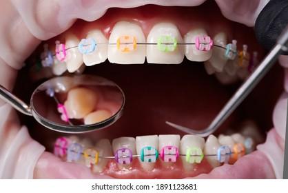 Macro Schnappschuss von offenem Mund, Zähne, Keramikbrackets mit bunten Gummibändern auf ihnen, Latex Wange Retraktor auf Lippen. Zahnärztin, die Zähne mit Spiegel und Zahnarztforscher überprüft. Konzept der Kieferorthopädie