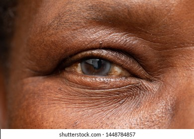A macro view on the eye of an African grandfather. A cloudy cataract is seen in detail. Degenerative eyesight disorder commonly associated with old age.