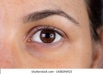 A macro view on the eye of a beautiful young woman with brown iris. Slight redness can be seen in the eyelids as she recovers from blepharitis, a bacterial infection.