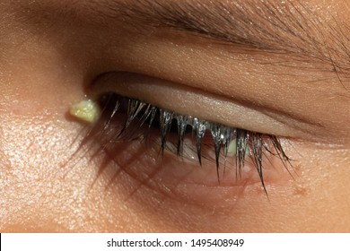 A macro view on the eye of a preschool boy, with red and puffy lower eyelid, yellow crusty discharge and watery lashes, symptomatic of viral conjunctivitis.