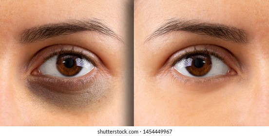A macro view on the eye of a young lady. Showing before and after suffering from dark circles beneath the eye. Bruising is seen on the left and flawless complexion on the right.