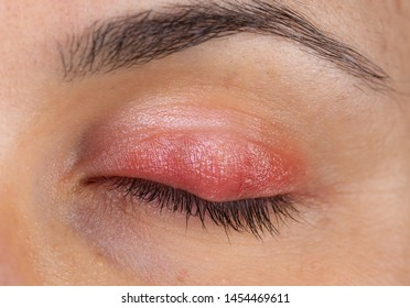 Macro view of a woman's eye with swollen and inflamed eyelid, symptomatic of a painful infection of the upper lid.