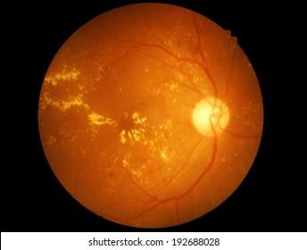 Macular degeneration - Retina isolated