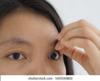 macular pucker and retinal detachment in woman, symptoms is vision is blurry or mildly distorted, and straight lines can appear wavy.