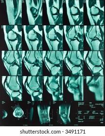 Magnetic resonance of a female knee
