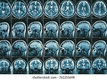 magnetic resonance of head image results, neurology concept