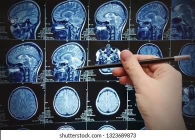 Magnetic resonance image of the brain (MRI),survey