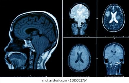 magnetic resonance image (MRI) of brain