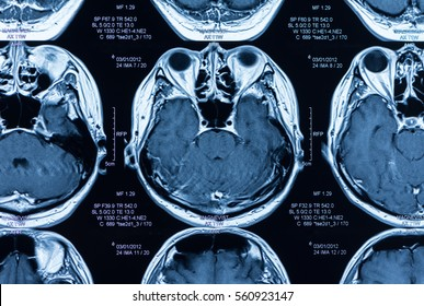 magnetic resonance image, mri scan of the brain.