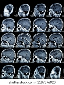 Magnetic resonance image scan of the brain. MRI head scan. Medicine, science