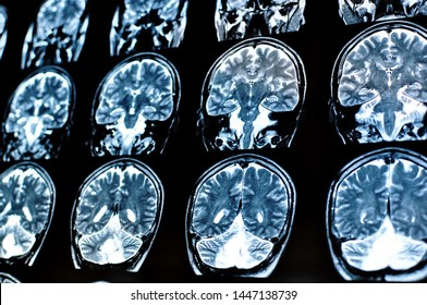 Magnetic resonance image scan of a man brain with a colloid cyst. MRI film of a human skull and brain tumor. Neurology background. Medicine, science.