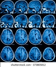 Magnetic resonance imaging (MRI) of the brain, brain tumor, two views (sagittal and transverse)