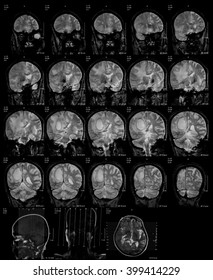 Magnetic resonance imaging (MRI) of the brain, brain tumor, brain abscess, coronal view.