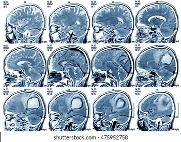 Magnetic resonance imaging (MRI) of the brain, brain tumor