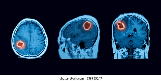 Magnetic resonance imaging (MRI) of the brain,  Intracerebral hemorrhage (ICH), brain abscess, three views (sagittal, coronal and transverse)